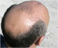 latest news and research on premature balding