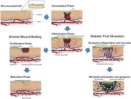 frontiers microbiota of chronic diabetic wounds ecology impact