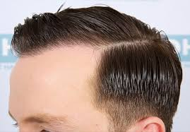 fienes hair transplant would you try the lunch hour hair transplant like calum best