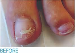 toenail reconstruction cfcc