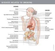 diseases related to jerusha ellis mscbmc