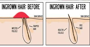 types of ingrown hair what you should know about ingrown hairs blog nude waxing