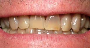 Natural Ways To Whiten Your Teeth Whitening Amazing 5 Tips To Whiten Your Teeth Immediately