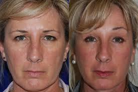 brow lift santa rosa cosmetic surgery artemedica
