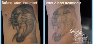 welcome to london tattoo removal