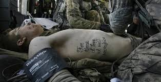combat ptsd news wounded times