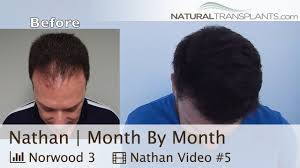 hair transplant month by month pictures hair transplant results month by month receding hairline nathan