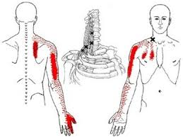 Shoulder And Arm Muscles Anatomy Shoulder Arm Hand And Scapula Pain From Scalene Muscle Trigger