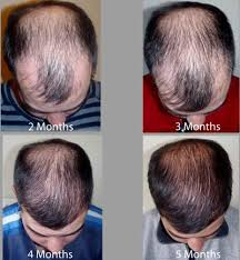 hair transplant month by month pictures hair loss hair transplant and hair restoration advice
