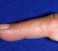 itchy bumps on hands that spread itchy bumps on fingers healthrave