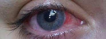 halloween reveller develops nasty eye infection wearing