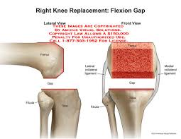 Right Knee Anatomy 14102 03b Right Knee Replacement Flexion Gap U2013 Anatomy Exhibits