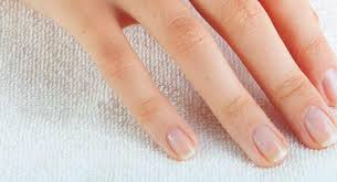 ridges in fingernails symptoms causes and treatments