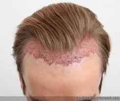 how to manage a ver low hairline should hairlines created during a hair transplant procedure be