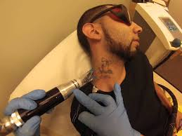 laser tattoo removal on darker skin types youtube