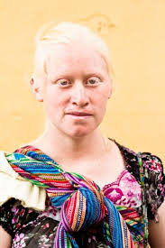 Illnesses That Cause Blindness Albinism Symptoms Causes And Diagnosis