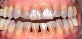 tetracycline and tooth staining although the antibiotic