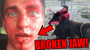 Famous People With Color Blindness Top 5 Most Awkward Mistakes On Youtube Vitaly Breaks Jaw Logan