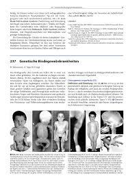 B Otisch Schmal Genetische Bindegewebskrankheiten Pdf Download Available