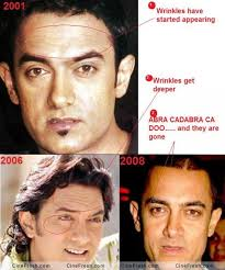 aamir khan hair transplant omg these 5 bollywood actors have undergone cosmetic surgery