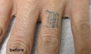 laser tattoo removal pricing u0026 cost allentown tattoo removal