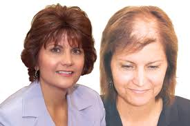 wigs for women with thinning hair before after