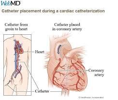 Webmd Human Anatomy 408 Best Cardiac Nursing Images On Pinterest Cardiac Nursing