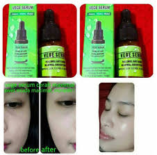 Serum Vege qoo10 vege serum vege seru jewelry