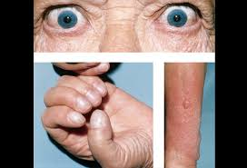 graves disease picture image on medicinenet com