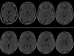 Axial Mri Brain Anatomy Mri Cases Brain Mri Scan Images