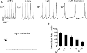 induced pluripotent stem cell u2013derived cardiomyocytes provide in