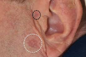 cancer of the ear cartilage basal cell carcinoma clinical review gponline