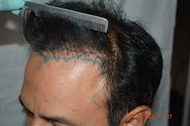 hair transplant costs in the philippines hair transplant archives page 2 of 2