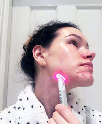 neutrogena light therapy acne mask before and after review neutrogena light therapy targeted acne spot treatment