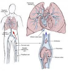 Picture Of Abdomen Anatomy Pulmonary Embolism Practice Essentials Background Anatomy