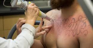 tattoo removal inc global tattoo removal market by drivers trends opportunities