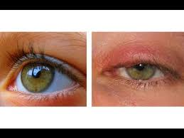 How To Get Rid Of Bed Sores How To Cure An Eye Infection In 24 Hours Youtube