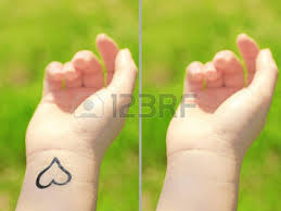 tattoo removal images u0026 stock pictures royalty free tattoo
