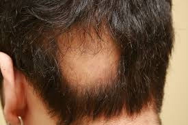 hair transplants as a remedy for apolecia fue hair transplant