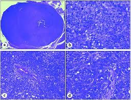 nerve sheath tumors