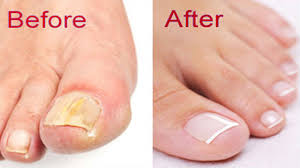 how to get rid of toenail fungus at home natural remedies for