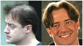 hair transplant in the philppines cost hair transplant india india hair transplant surgery hair treatment