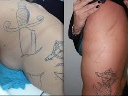 laser tattoo removal in las vegas skin design tattoo
