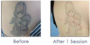 laser tattoo removal program disappearing ink nyc