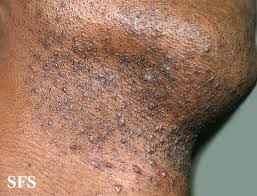 ingrown hair on chin infection ingrown hair prevention infection scars pictures cure removal