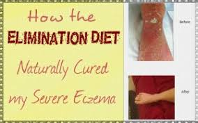 video how the elimination diet naturally cured my severe eczema
