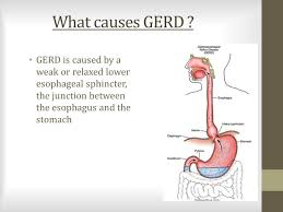 Ruth Fernandez Gerd Gastroesophageal Reflux Disease By Ruth Fernandez Faviola