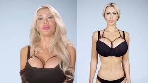 human barbie doll ribs removed swedish model spent 135k on surgery to look like jessica rabbit
