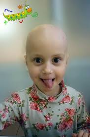 70 best alopecia areata images on pinterest hair loss