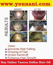 kalonji for hair growth tazeen zulfen hair oil is natural remedies for hair loss and hair